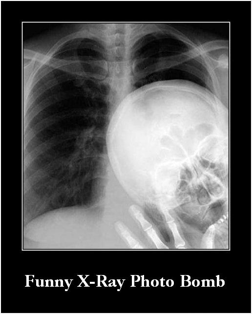Funny X-Ray Photo Bomb Image