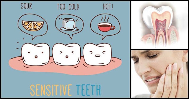 Kitchen Remedies That Help Alleviate Pain From Sensitive Teeth
