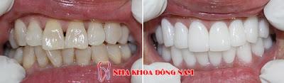 những điều cần biết về bọc răng sứ -13