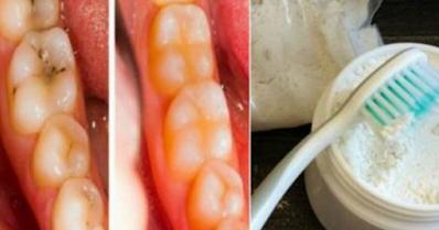 Aprende como curar las Caries y Blanquear los dientes en Solo 2 Días.