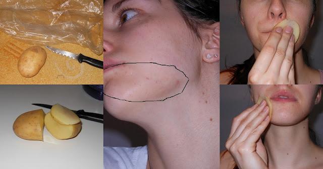 Comment-enlever-taches-brunes-naturellement