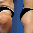 How to Get Rid of Cellulite Naturally Without Painful Surgery