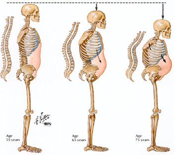 premium beautiful corset mencegah osteoporosis serta badan bongkok dan membantu badan membina vitamin D dengan cahaya far infra red