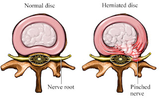 disc-herniation