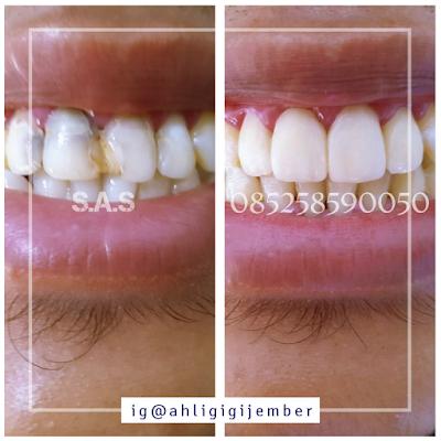 Veneer gigi keropos di sas ahli tukang gigi pati