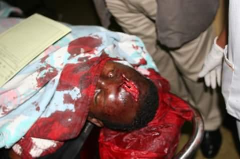 قتال عنيف يدور باثيوبيا الان والالاف يتجهون نحو الحدود السودانية القلابات