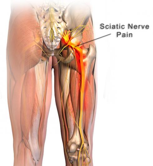 Anatomia Nervio Ciatico
