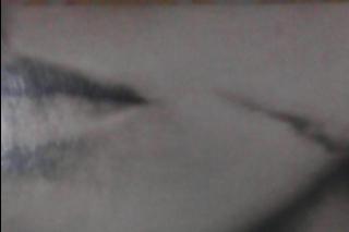 Cara nenghapus noda bekas luka di kulit