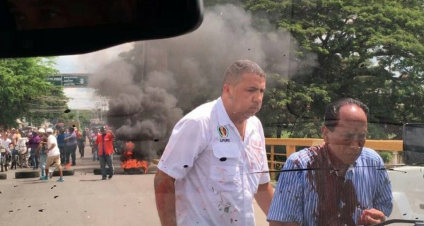 Colectivos atacaron e hirieron a candidato de la MUD en Apure