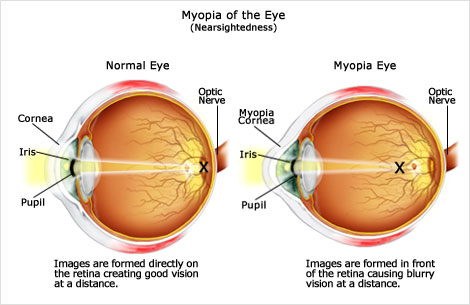 Normal eye and myopia