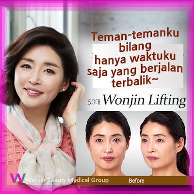 wonjin baby face v-lifting untuk wanita usia 50an