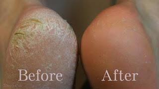 وصفات تخلصك من خلايا الجلد الميت في القدمين