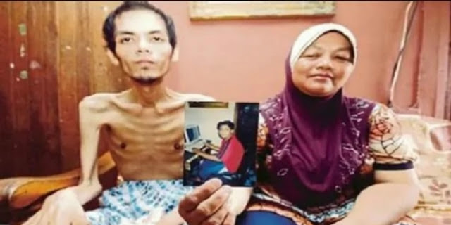 Tubuh Khairul Seolah Tinggal Tulang dan Kulit, Alasannya Gara-gara Minum `Racun` Ini...