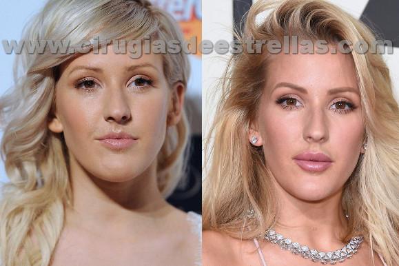 Ellie Goulding antes y después