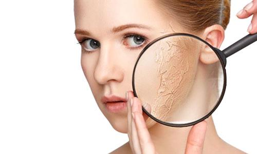 Síntomas de una piel seca