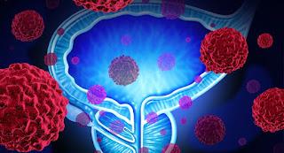 prostat kanseri, immünoterapi