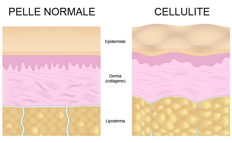 Risultati immagini per cellulite tessuto