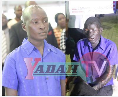 Prophet Magaya heals man with terrible skin diseases in Zimbabwe