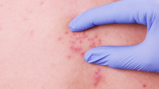scabies - causes, symptoms, and treatment - public health, Cephalic Vein