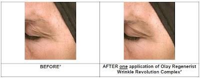 An analysis of gathering wrinkles around the eyes