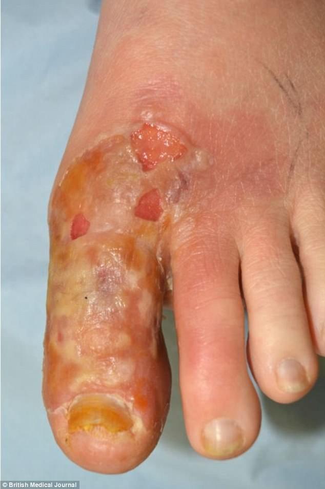 Phụ nữ Anh bị bỏng độ 2 do dùng tỏi tươi để trị nấm móng chân