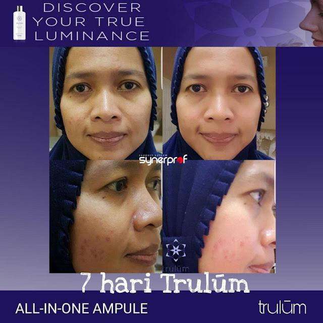 Makin Cantik atau Ganteng Tanpa Harus Ke Dokter Kecantikan di Panggungrejo Blitar