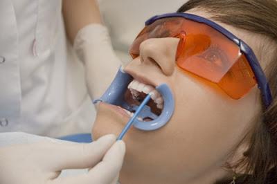 có nên tẩy trắng răng cho trẻ không -1