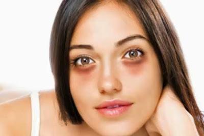 Tips Menghilangkan Kantung Mata