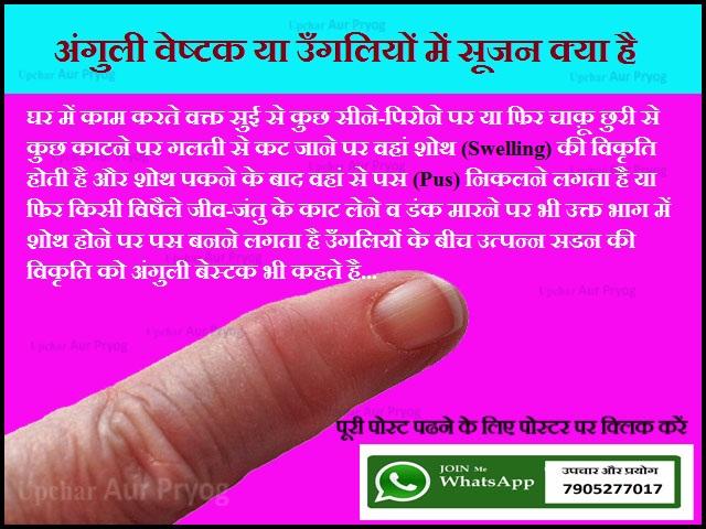 अंगुली वेष्टक या उँगलियों में सूजन क्या है