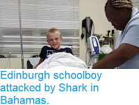 https://sciencythoughts.blogspot.com/2018/04/edinburgh-schoolboy-attacked-by-shark.html