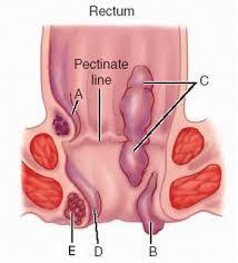 tonjolan didekat anus dibarengi gatal serta nyeri