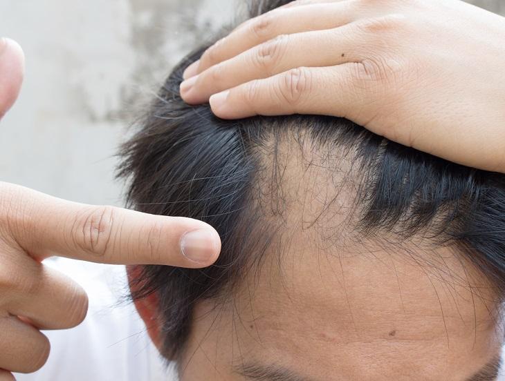 Caida de cabello repentina en hombres