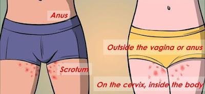 Infectia cu HPV la barbati – cauze si tratament