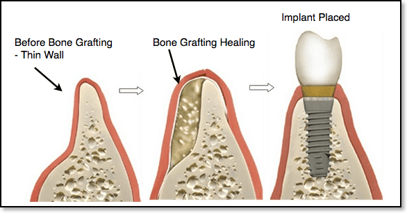 bone-grafting-before-implant-placement