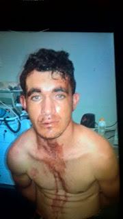 Após levar uma baita surra assaltante é preso em Soledade