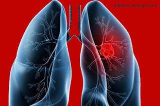 4 Penyebab Kematian Mendadak - emboli paru