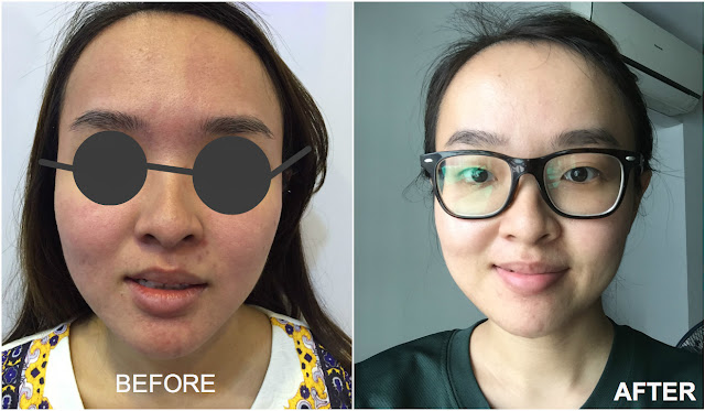 Venus Viva Singapore treatment review