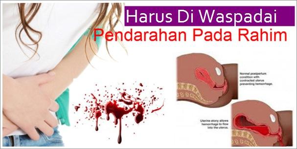obat pendarahan rahim di apotik