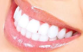 Cara Alami Memutihkan Gigi Dengan Cepat Di Rumah