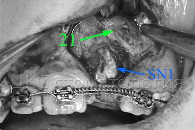 Удаление сверхкомплектного зуба