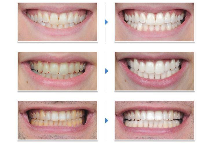 Cara Cepat Putihkan Gigi Kuning Dan Berkarat