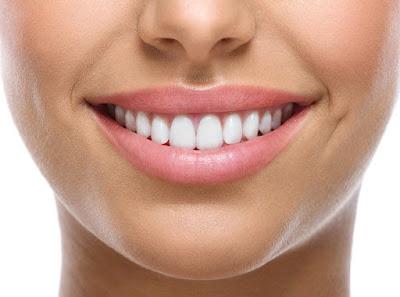 zâmbet - dinți sănătoși