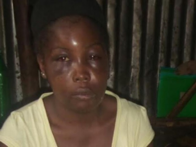 Teacher Battered By Ex – Husband For Not Picking His Call
