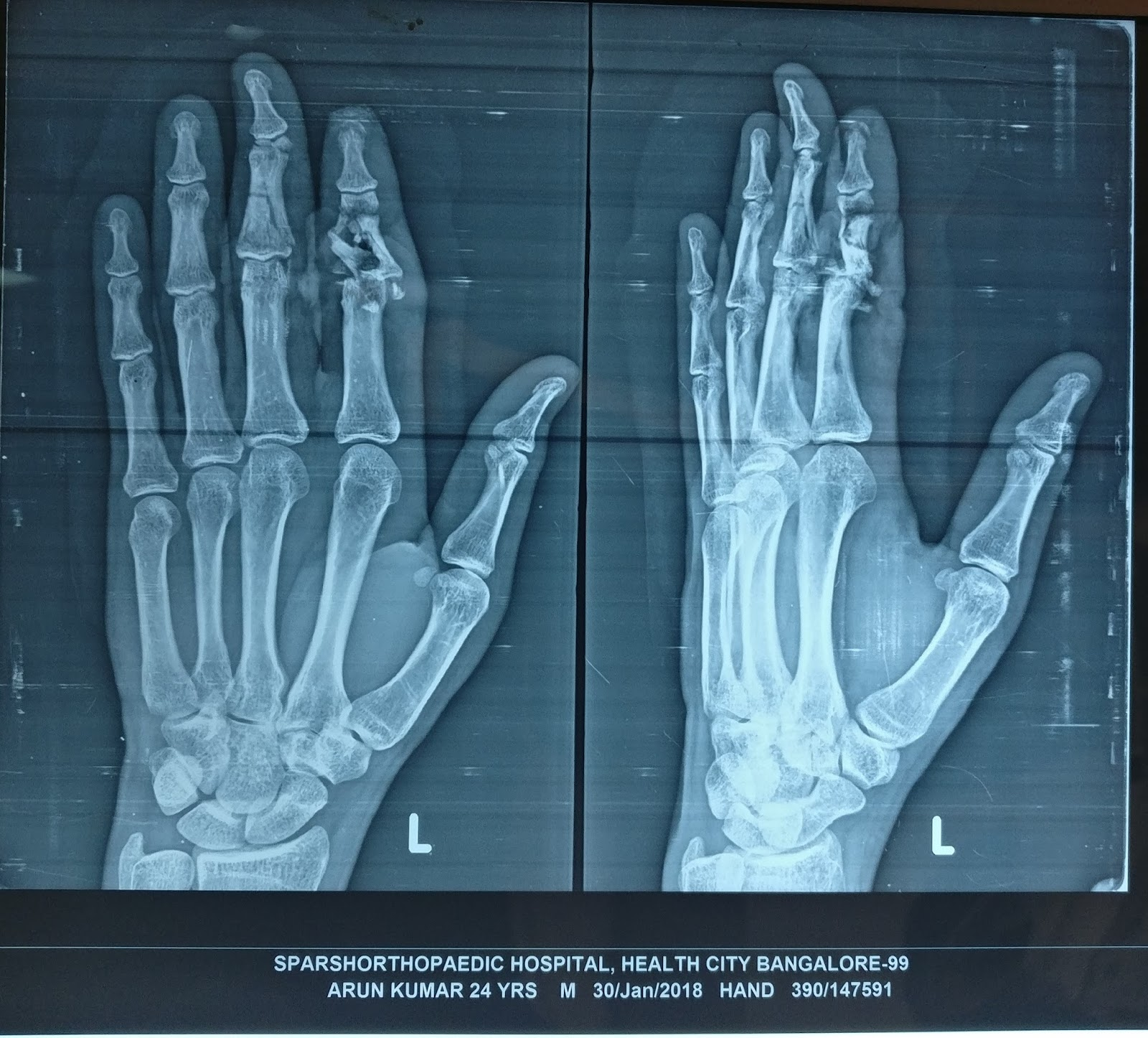 OPEN COMMINUTED FRACTURE MIDDLEPHALANX LEFT INDEX FINGER ASSOCIATED ...