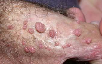 condyloma valtrex)