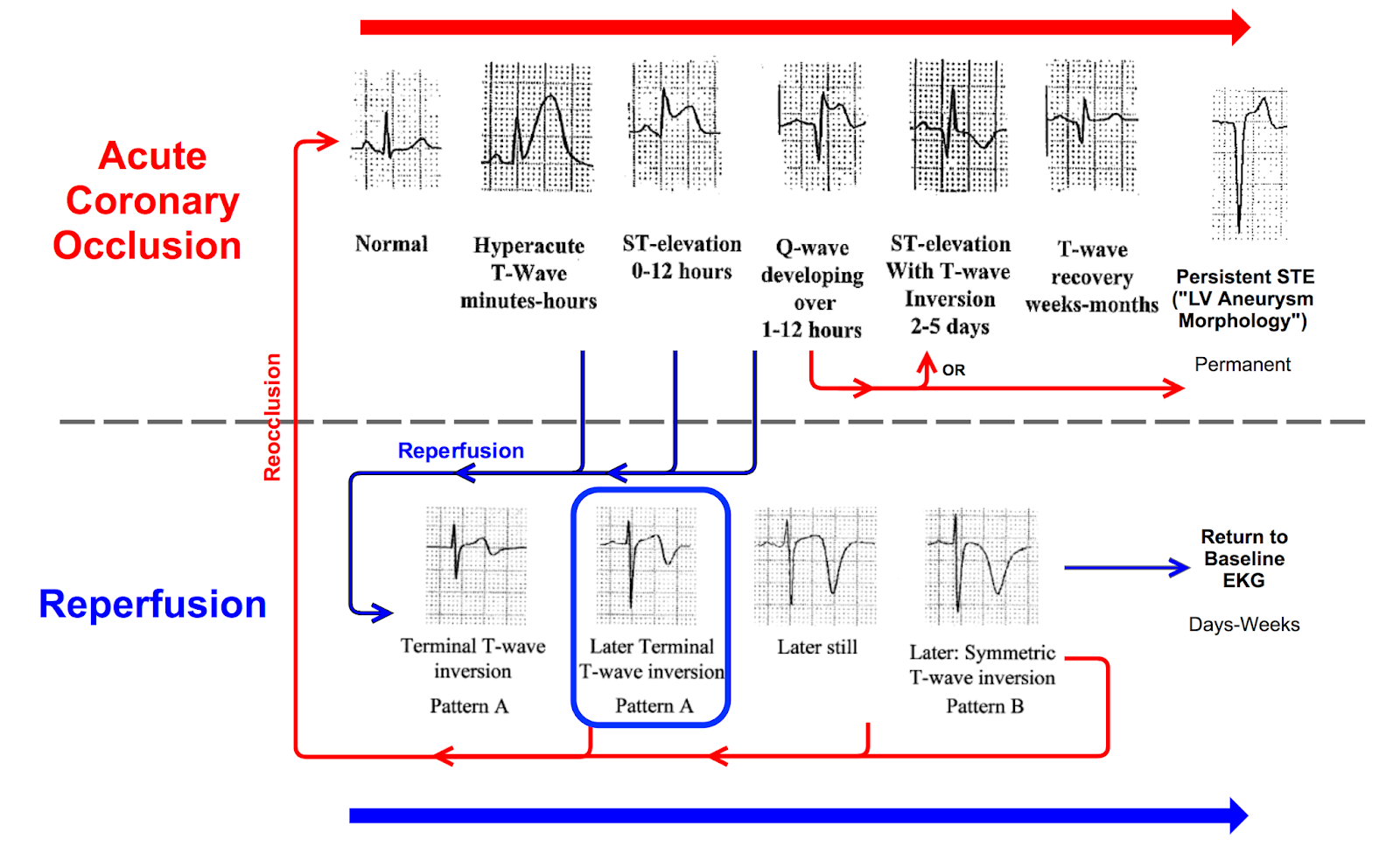 Dr Smith S Ecg Blog See What Happens When Hyperacute T