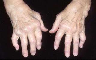 milagros untuk rheumatoid arthritis