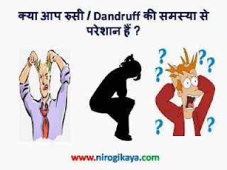 Dandruff Causes & Treatment in Hindi
