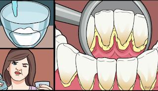 Οδοντική πλάκα τέλος: Κάντε τα δόντια σας να αστράφτουν, με αυτή τη σπιτική συνταγή