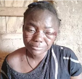 nursing mother beaten by boyfriend ebonyi